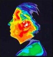 Image thermographique de la tête avec portable