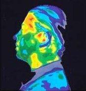 Image thermographique de la tête sans exposition